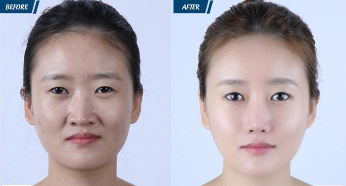 Hình ảnh khách hàng trước và sau khi cấy mỡ tự thân lên mặt.
