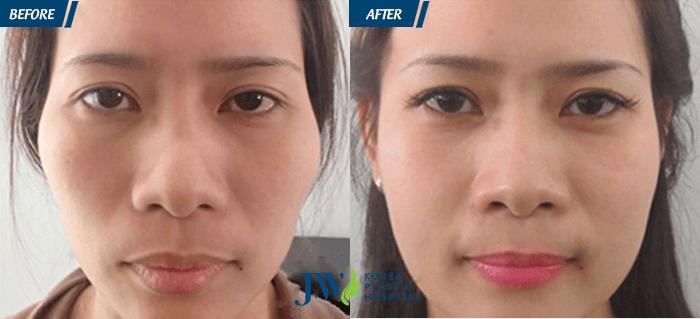 Khách hàng trước và sau khi phẫu thuật hạ gò má an toàn.