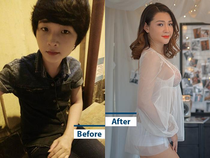 Thoại Vy trước và sau khi phẫu thuật chuyển đổi ngoại hình.