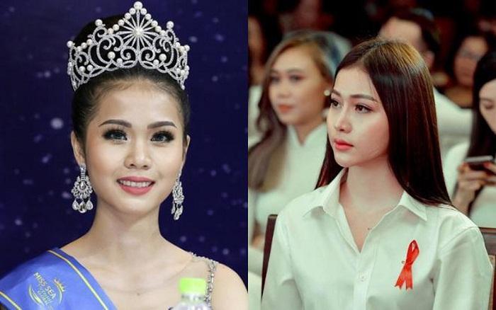Hoa hậu Kim Ngọc phẫu thuật thẩm mỹ