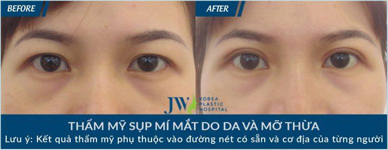 Cắt da thừa mí mắt ở đâu đẹp và an toàn cao - hình 5