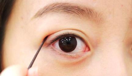 Mắt 2 mí là gì? Làm sao để có mắt 2 mí đẹp - hình 2