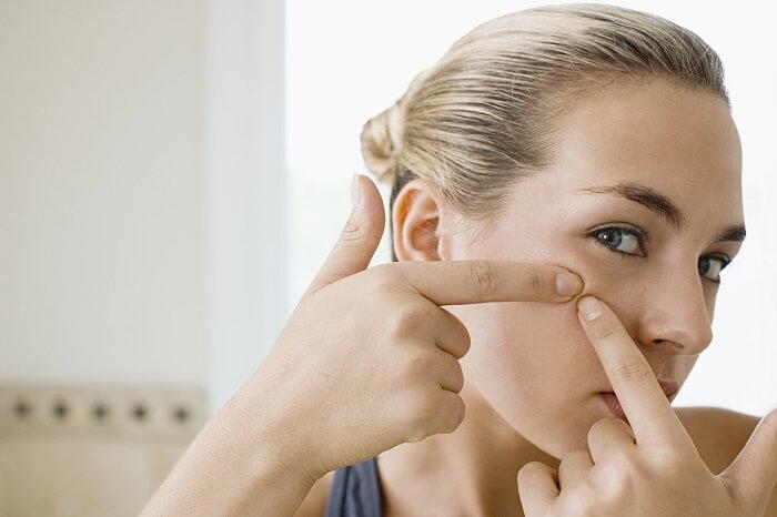Bí quyết chăm sóc da mụn và ngăn ngừa mụn hiệu quả - hình 5