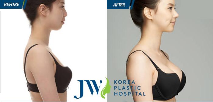 """Công nghệ nâng ngực bằng mỡ tự thân an toàn giúp khách hàng có được """"đôi gò bồng đào"""" căng tròn, săn chắc."""