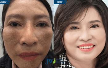 Cao Mỹ Kim ghen tỵ với làn da đẹp của người phụ nữ U40