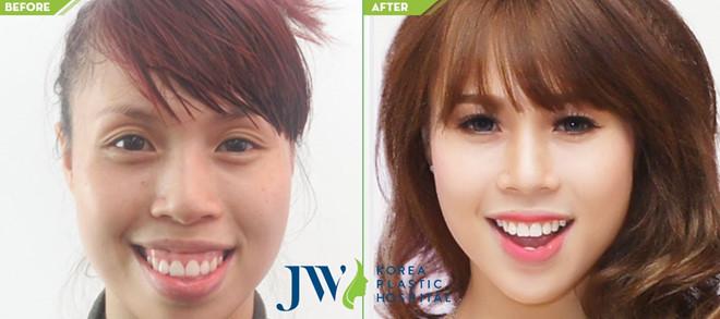 Niềng răng hô hàm trên tại JW