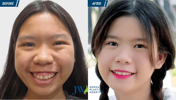 Phẫu thuật hàm hô JW và cái kết_5