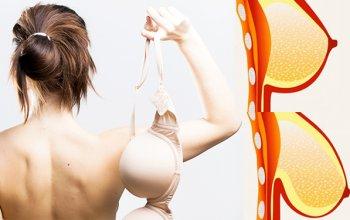 Phụ nữ không nên mặc áo ngực