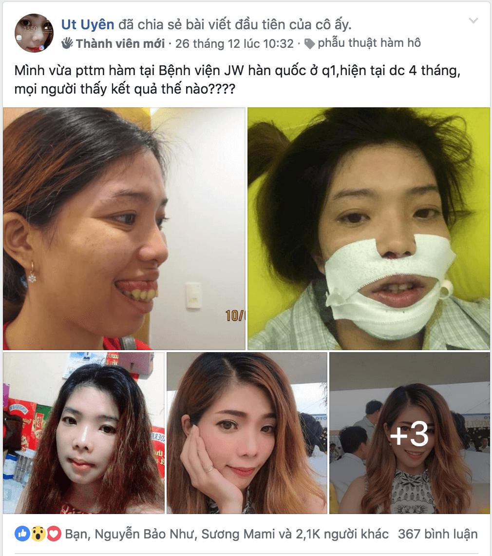 Hình ảnh Ut Uyên chia sẻ thu hút hàng ngàn lượt like, share và comment  - Phẫu thuật hàm móm