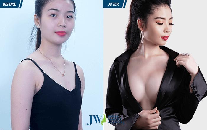 Hot girl Yến Nhi trước và sau khi nâng ngực nội soi Nano chip giọt nước 4.0 an toàn.