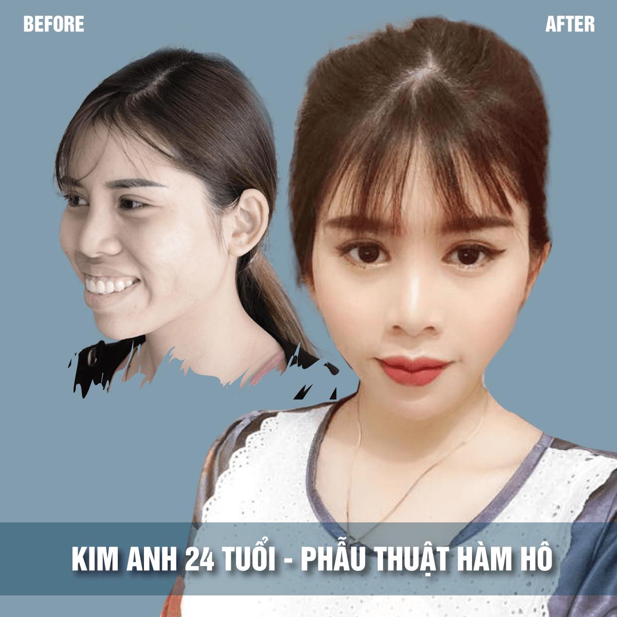 Hot girl Kim Anh phẫu thuật hàm hô, phẫu thuật hàm hô jw