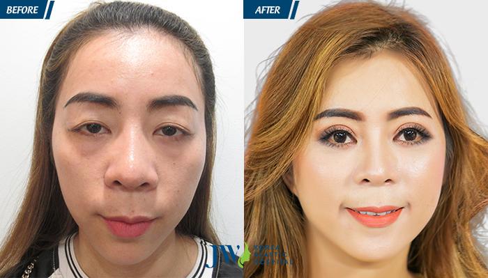 Phẫu thuật thẩm mỹ mắt kiêng ăn gì - hình 4