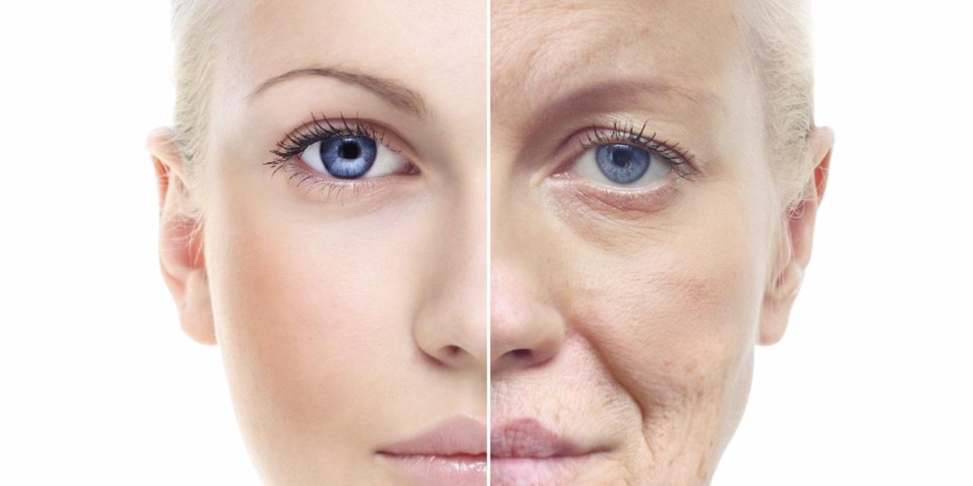 Bọng mắt dưới là gì? Cách chữa trị bọng mắt dưới hiệu quả nhất - hình 3