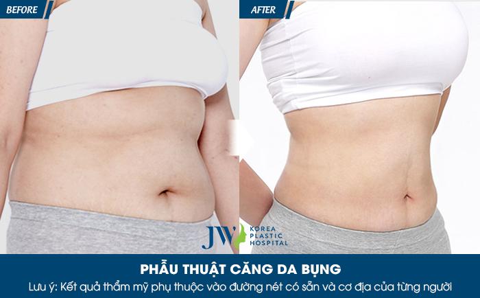 Hé lộ 4 cách giúp căng da bụng không cần phẫu thuật_6