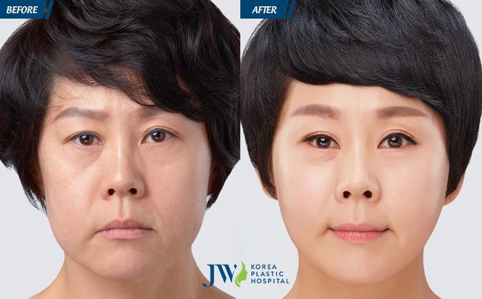 Căng da mặt Mesh Lift không phẫu thuật - Lần đầu tiên có mặt tại Việt Nam - 3