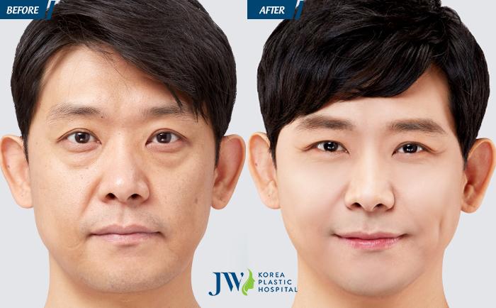 Căng da mặt Mesh Lift không phẫu thuật - Lần đầu tiên có mặt tại Việt Nam - 4