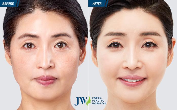 Căng da mặt Mesh Lift không phẫu thuật - Lần đầu tiên có mặt tại Việt Nam - 5