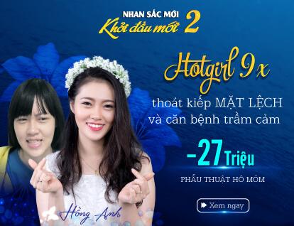Banner Hồng Anh phẫu thuật hàm móm – Mobile