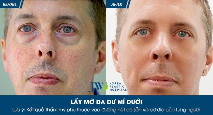 Bọng mắt dưới là gì? Cách chữa trị bọng mắt dưới hiệu quả nhất - hình 12