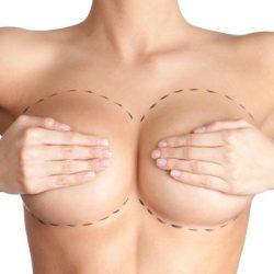 Khám phá địa chỉ nâng ngực nội soi TP.HCM