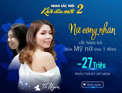 Banner Tố Uyên Phẫu thuật hô móm – Mobile