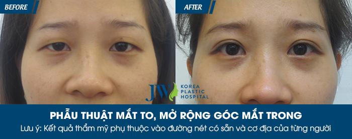 Phẫu thuật mắt to ở đâu tốt nhất - hình 6