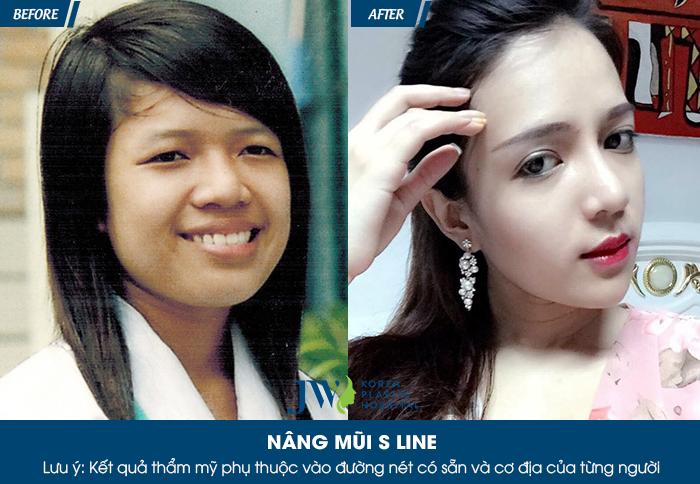 nang-mui-han-quoc-bao-nhieu-tien-3-dieu-can-biet-4
