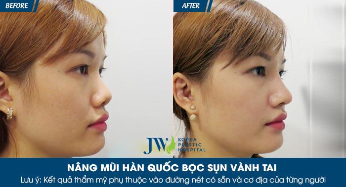 nang-mui-bac-si-han-quoc-tai-viet-nam-cong-nghe-chuan-han-5