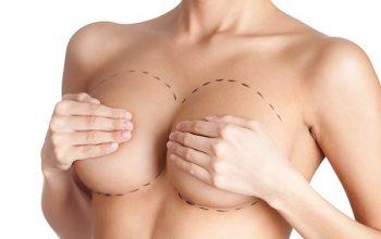 nâng ngực giá bao nhiêu