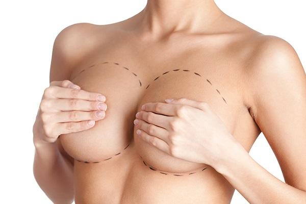 Nâng ngực giá bao nhiêu tiền? Bảng giá chuẩn 2019