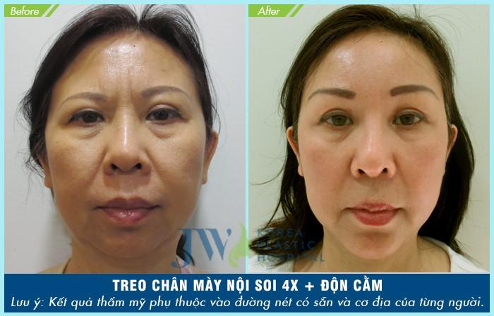 nang-cung-may-noi-soi-4x-cai-lao-hoan-dong-han-che-xam-lan-1-4