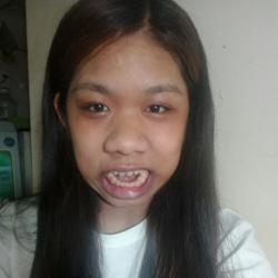Lạ lùng chuyện cô gái đầy lông lá không thể khóc, không khép được miệng vì 10 căn bệnh hiếm gặp