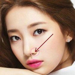 Cắt cánh mũi có phá lộc không? 4 dáng mũi nhiều người ngại thay đổi