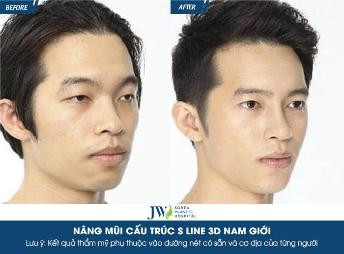 nang-mui-bao-nhieu-tien-cho-mat-dep-nhu-gai-han-quoc-10