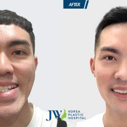 Chàng trai Hải Phòng may mắn được phẫu thuật hàm móm cứu chức năng ăn nhai