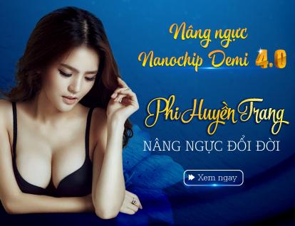 Banner Phi Huyền Trang – Mobile
