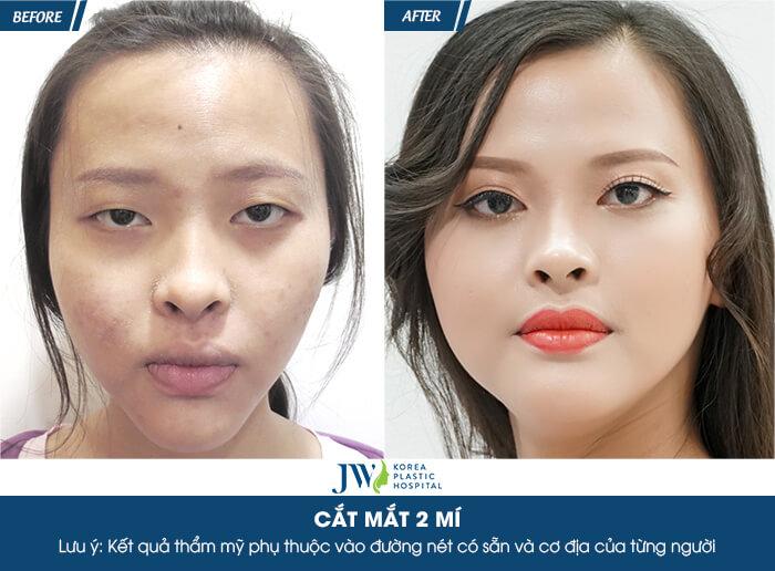review-cat-mi-mat-nhung-dau-hieu-cho-thay-ban-can-chinh-sua-mat-ngay-2