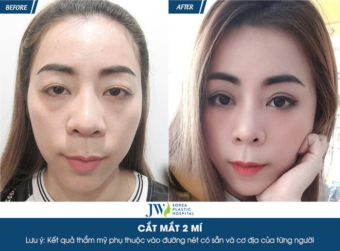 review-cat-mi-mat-nhung-dau-hieu-cho-thay-ban-can-chinh-sua-mat-ngay-4