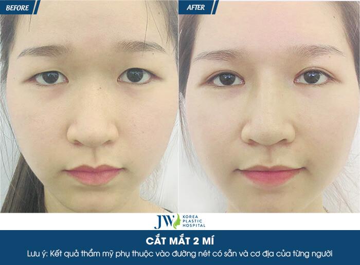review-cat-mi-mat-nhung-dau-hieu-cho-thay-ban-can-chinh-sua-mat-ngay-5