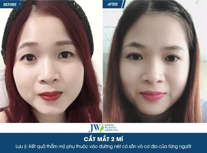 gia-cat-mat-2-mi-chuan-han-ngay-tai-viet-nam-4