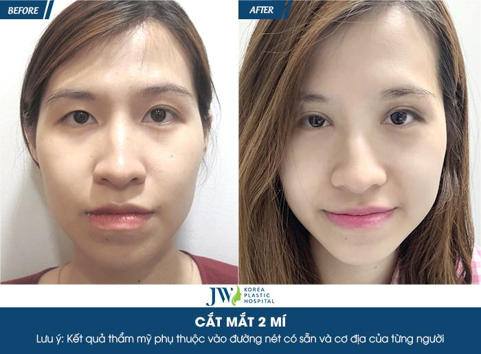 Kết quả hình ảnh cho site:https://thammyhanquoc.vn/ cắt mí mắt nam