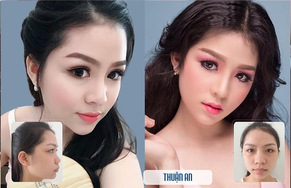 nang-song-mui-gia-bao-nhieu-bang-gia-nang-mui-2019-8