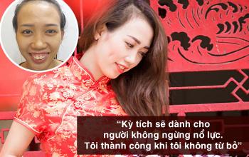 Cô gái xấu xí Ninh Thuận hóa hotgirl nhờ phẫu thuật hàm hô