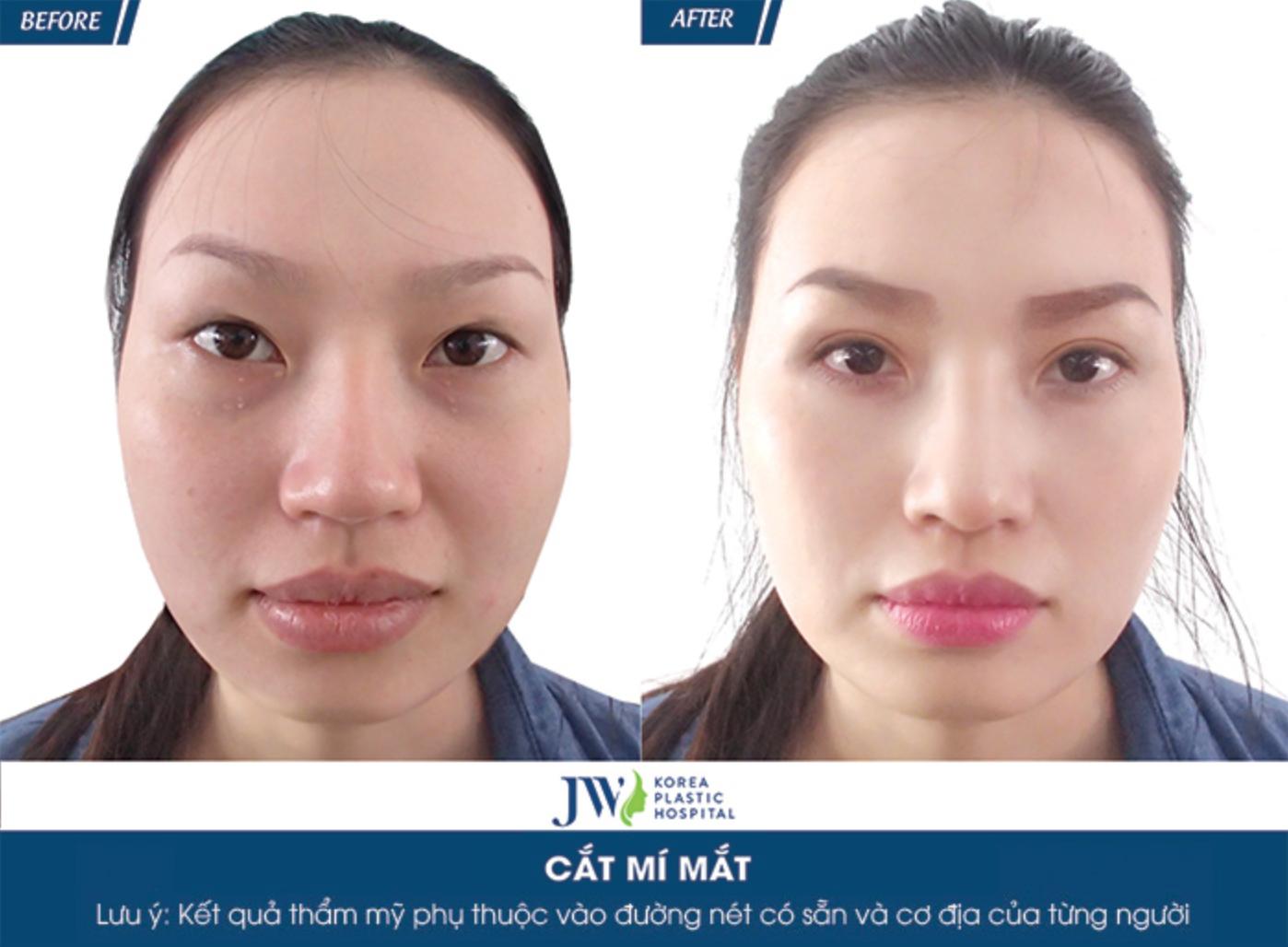 gia-cat-mat-2-mi-chuan-han-ngay-tai-viet-nam-1