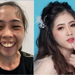 Phẫu thuật hàm hô hoàn thiện chức năng ăn nhai cho 9X Bình Thuận