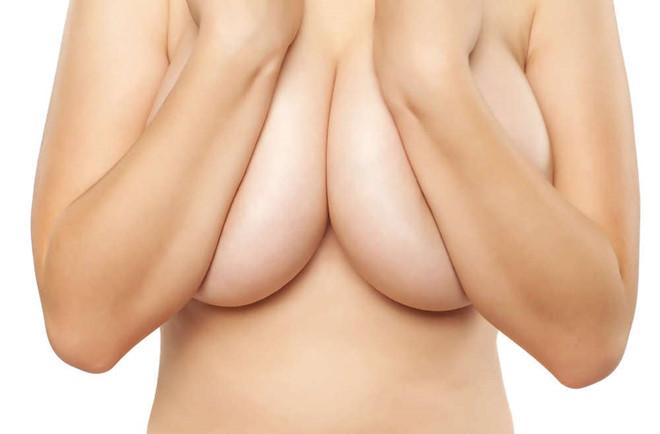 Chuyên gia tiết lộ cách làm ngực nhỏ lại hiệu quả hiện nay_2