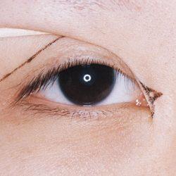 Lợi hại của phẫu thuật mở rộng góc mắt không phải ai cũng biết