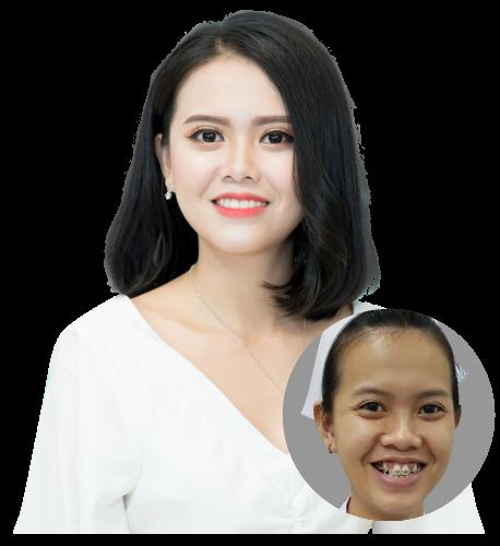 Ngọc Diễm – Nữ Y tá xinh đẹp bất ngờ sau 2 năm niềng răng