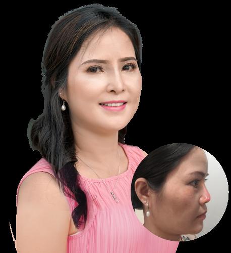 Cứu chữa thành công chiếc mũi biến dạng cho nữ Việt kiều