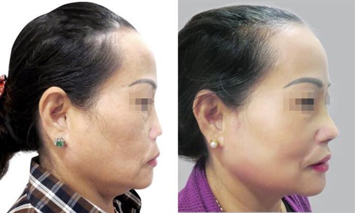 TS.BS Nguyễn Phan Tú Dung – Người cứu chữa thành công hàng nghìn ca mũi hỏng- hình 6